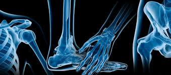 Abordaje fisioterapeutico en afecciones musculoesqueleticas san borja-san miguel-miraflore