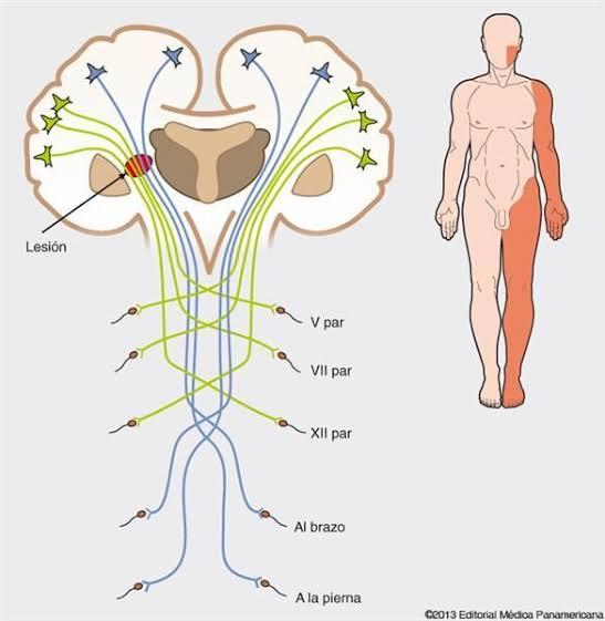 Terapia fisica neurologica a domicilio